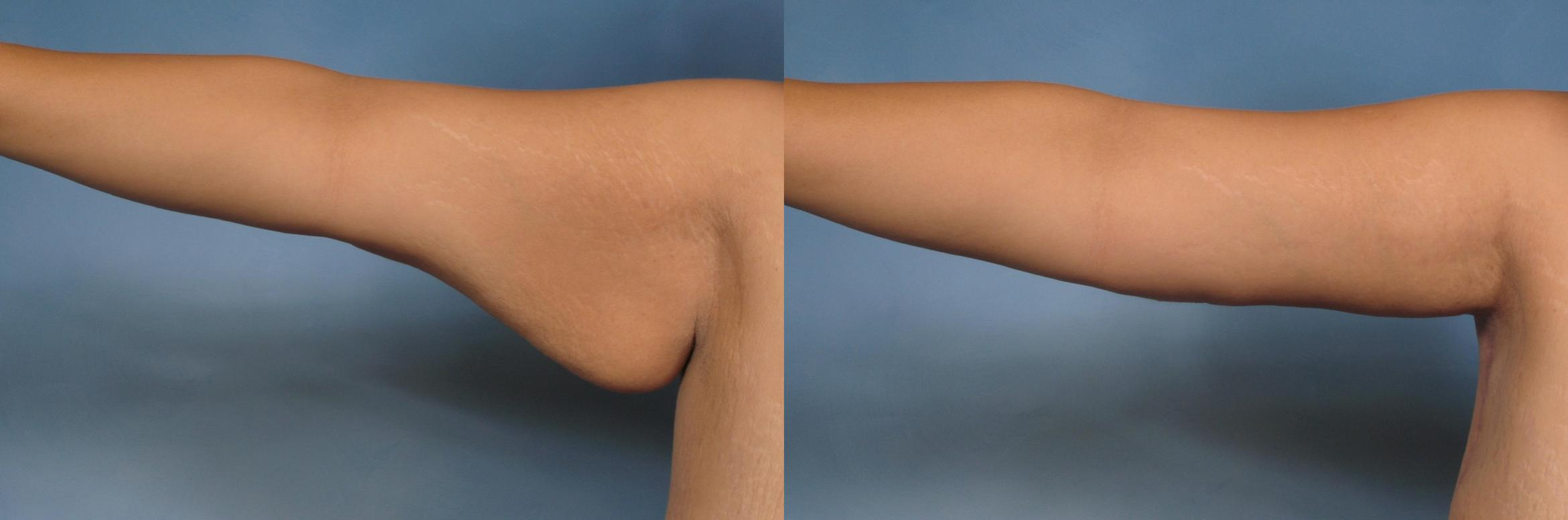 Arm Lift Case 132 Before & After View #1 | Naples, FL | Kent V. Hasen, M.D.