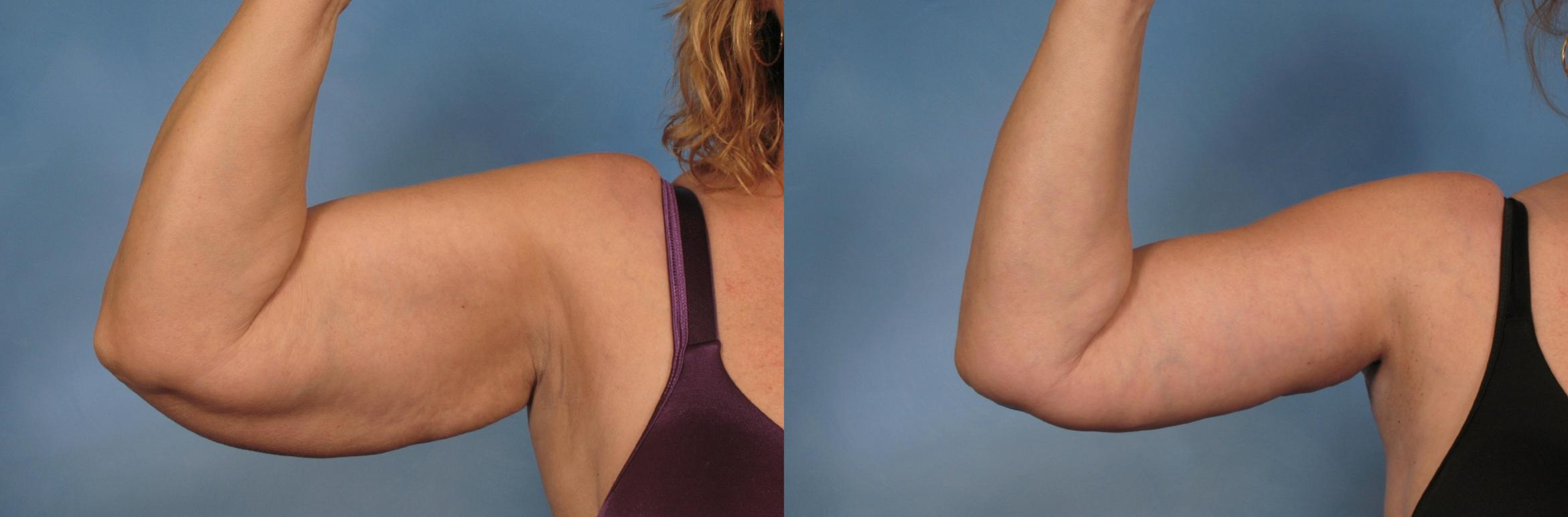 Arm Lift Case 133 Before & After View #1 | Naples, FL | Kent V. Hasen, M.D.