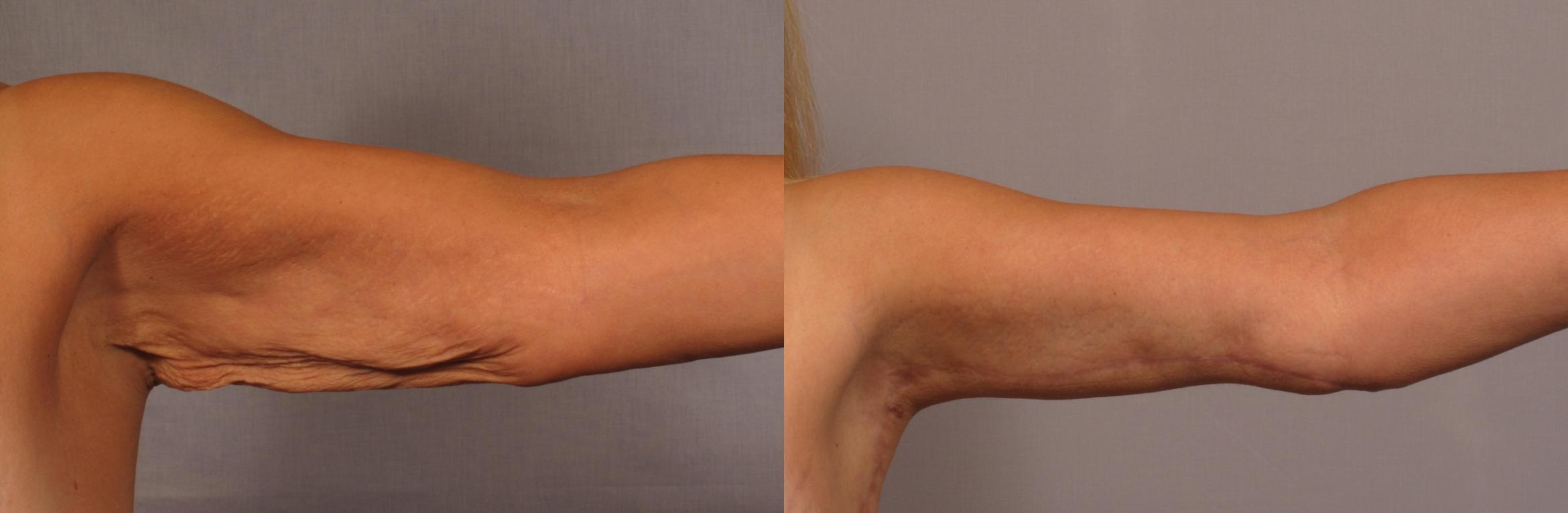 Arm Lift Before and 6 Months After, Left Inner Straight