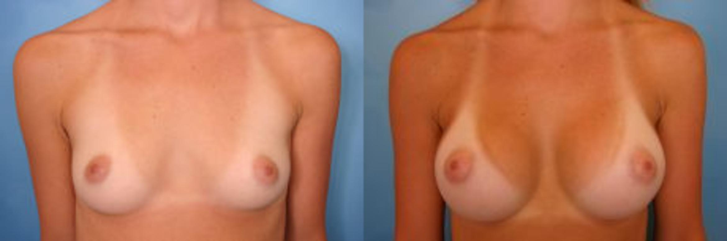 Breast Augmentation Case 1 Before & After View #1 | Naples, FL | Kent V. Hasen, M.D.
