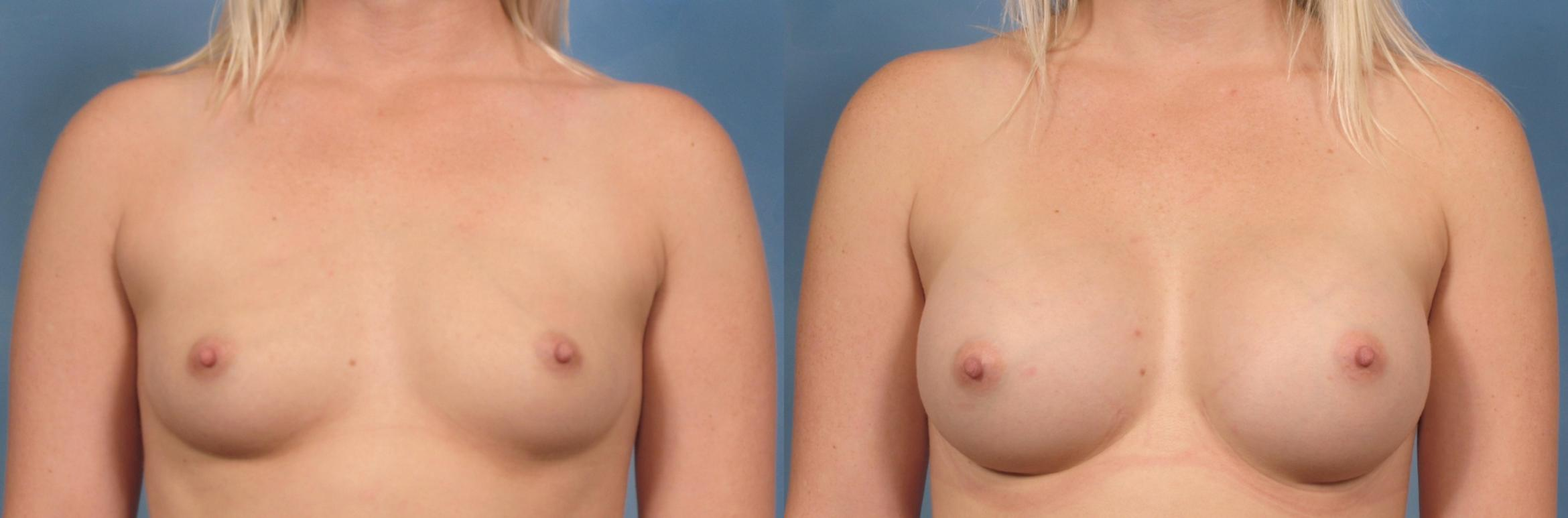 Breast Augmentation Case 121 Before & After View #1 | Naples, FL | Kent V. Hasen, M.D.