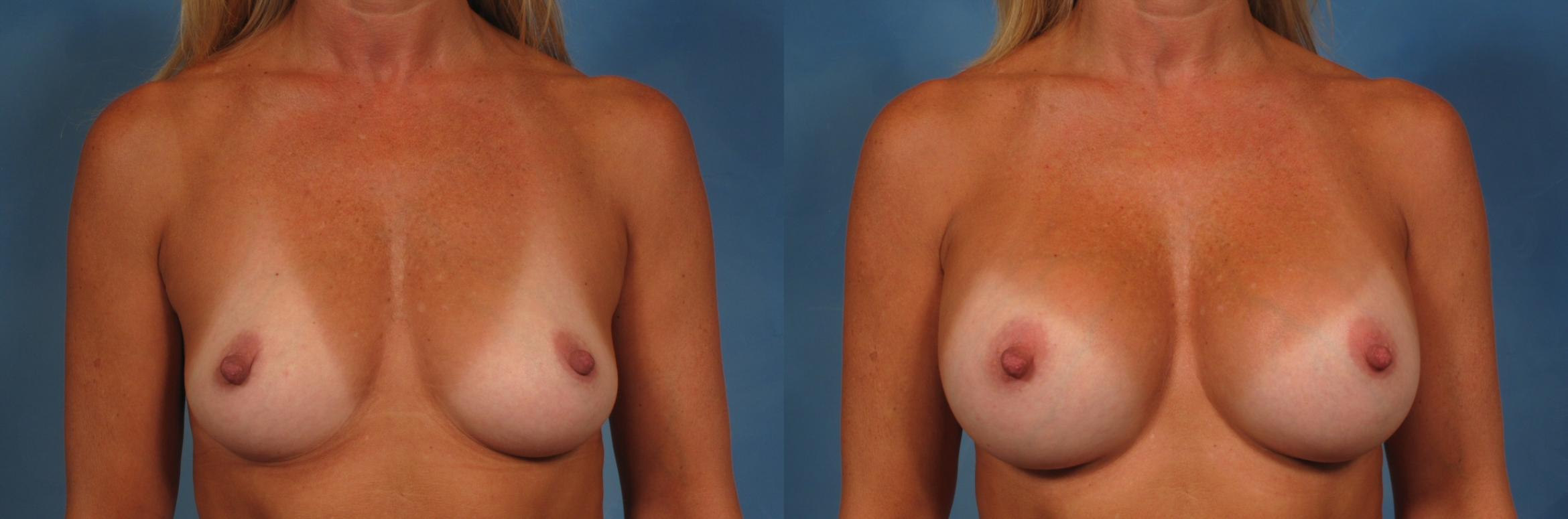 Breast Augmentation Case 206 Before & After View #1 | Naples, FL | Kent V. Hasen, M.D.