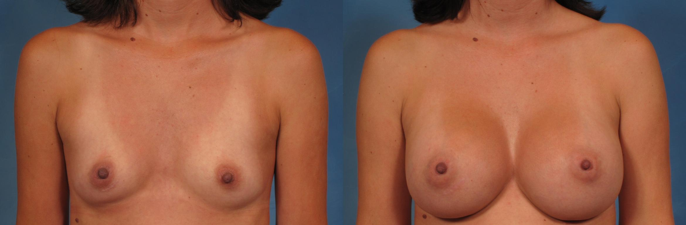 Breast Augmentation Case 249 Before & After View #1 | Naples, FL | Kent V. Hasen, M.D.