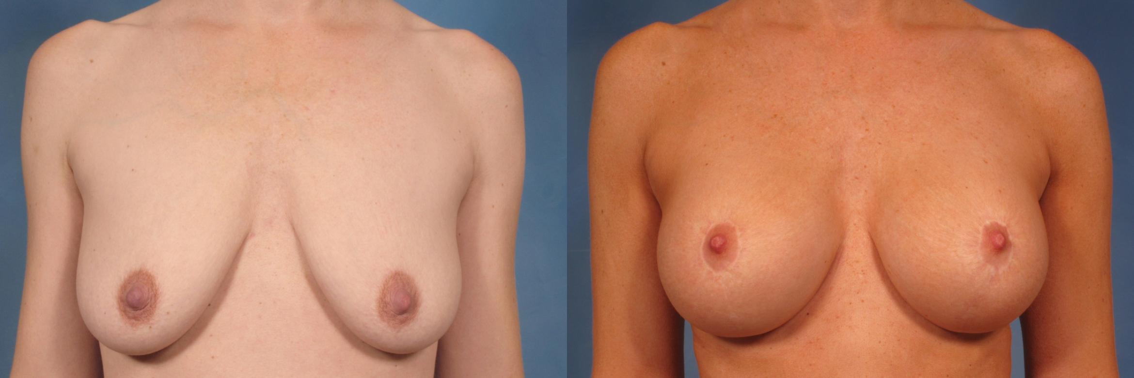 Breast Augmentation with Lift Case 135 Before & After View #1 | Naples, FL | Kent V. Hasen, M.D.
