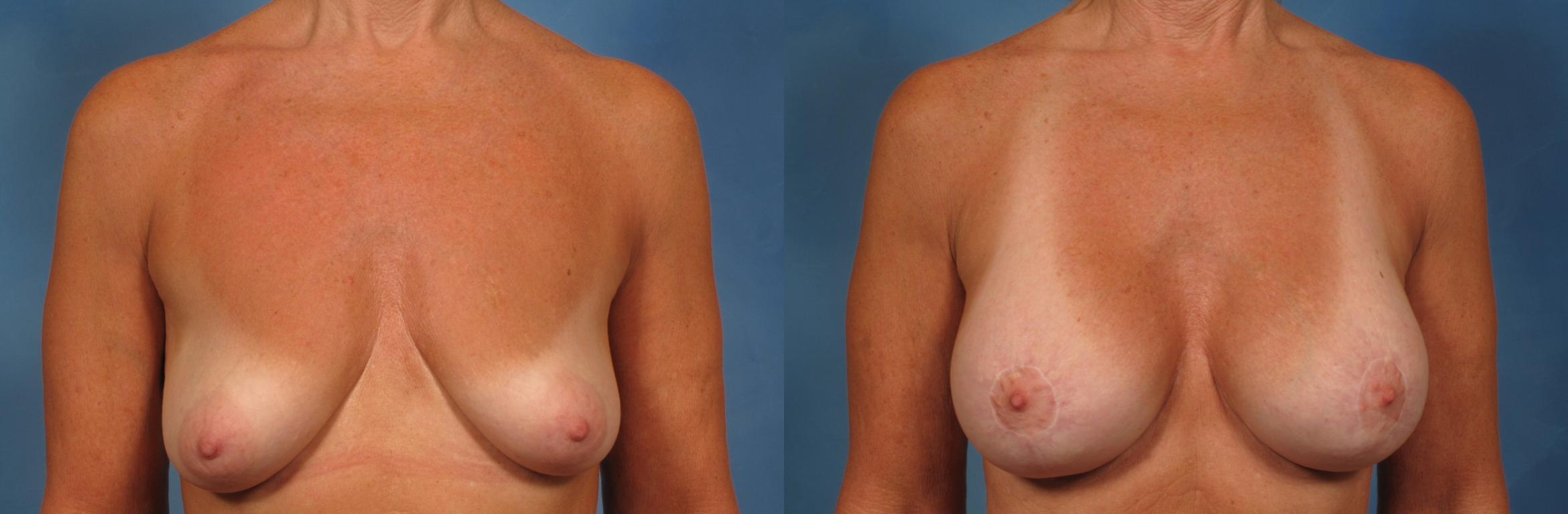 Breast Augmentation with Lift Case 252 Before & After View #1 | Naples, FL | Kent V. Hasen, M.D.