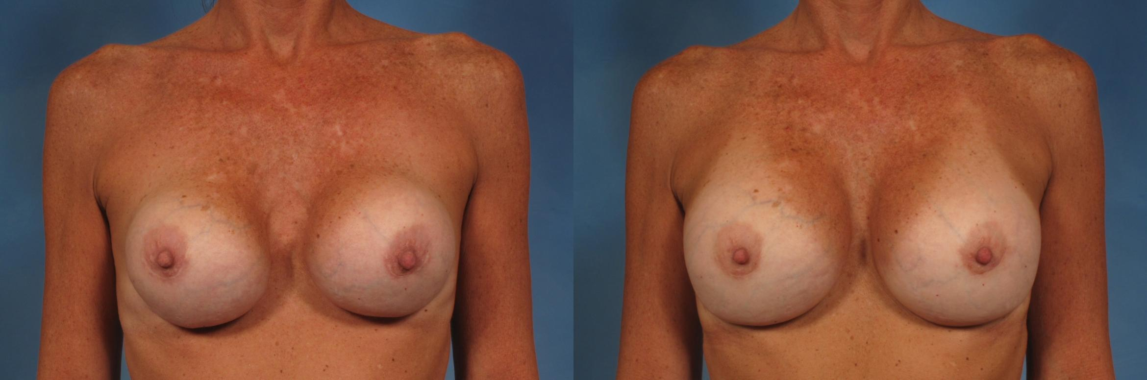 Breast Implant Exchange/Revision Case 168 Before & After View #1 | Naples, FL | Kent V. Hasen, M.D.