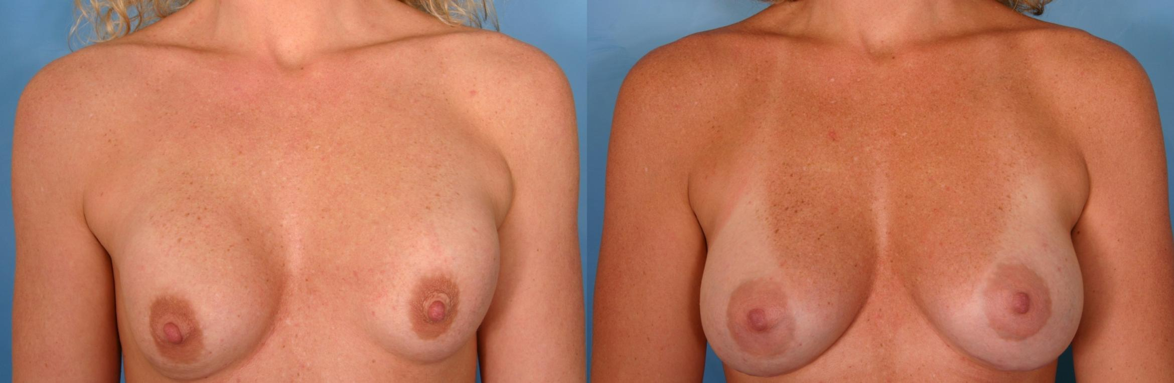 Breast Implant Exchange/Revision Case 31 Before & After View #1 | Naples, FL | Kent V. Hasen, M.D.