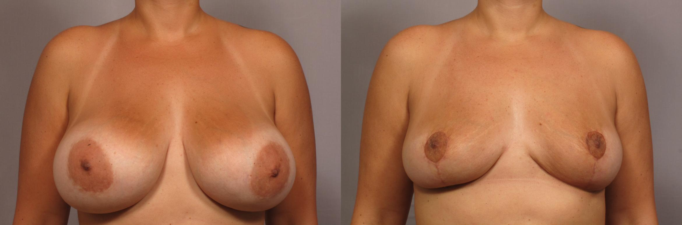 Breast Implant Removal Case 359 Before & After View #1 | Naples, FL | Kent V. Hasen, M.D.