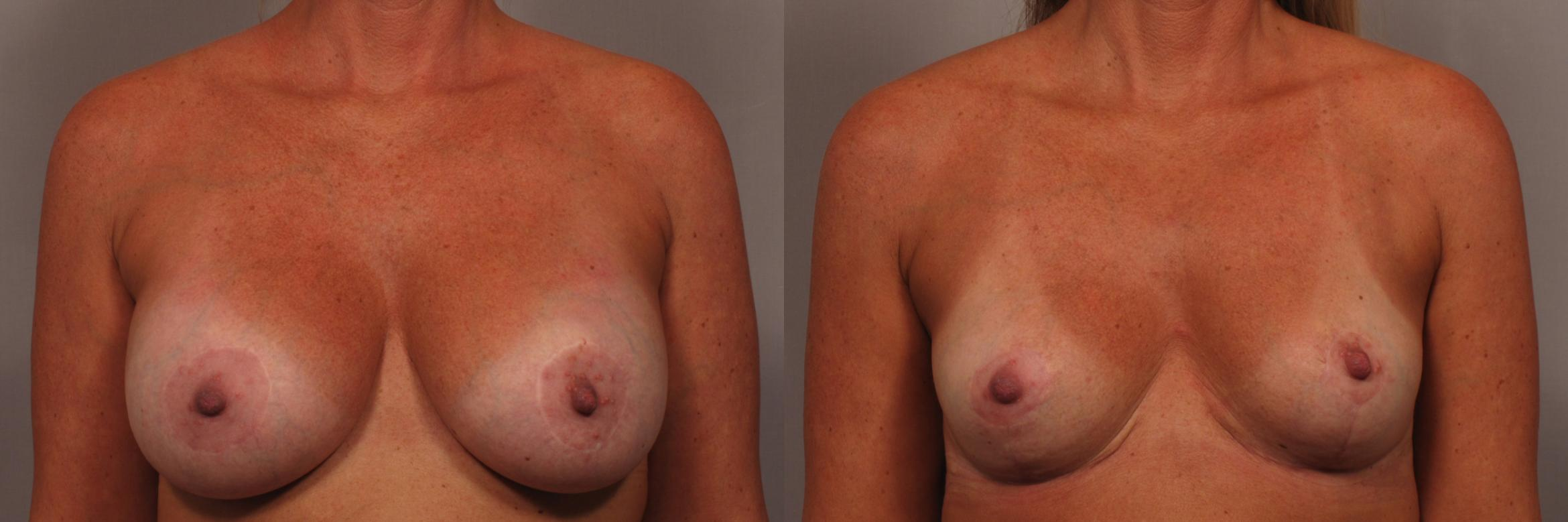 Breast Implant Removal Case 361 Before & After View #1 | Naples, FL | Kent V. Hasen, M.D.
