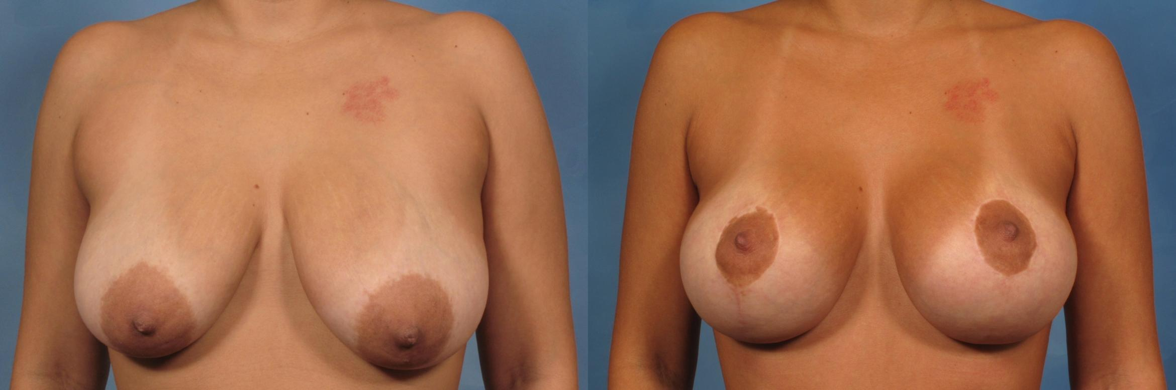 Breast Lift Case 138 Before & After View #1 | Naples, FL | Kent V. Hasen, M.D.