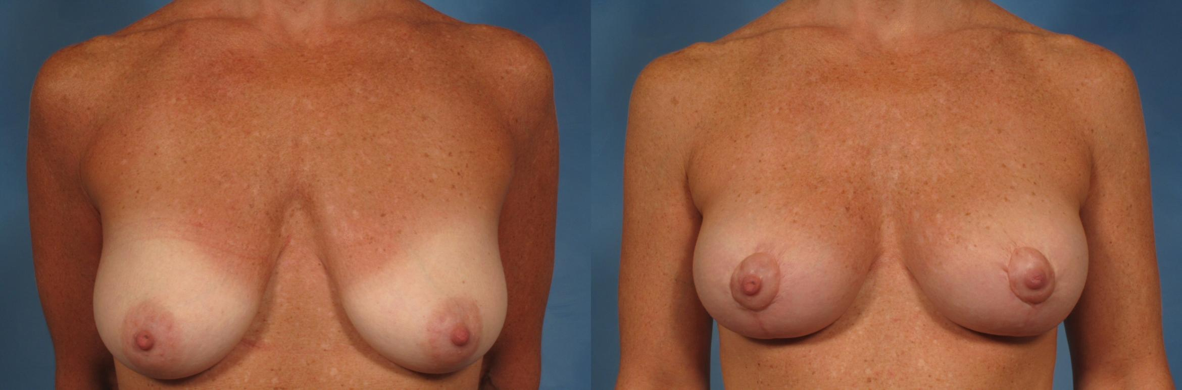 Breast Lift Case 199 Before & After View #1 | Naples, FL | Kent V. Hasen, M.D.