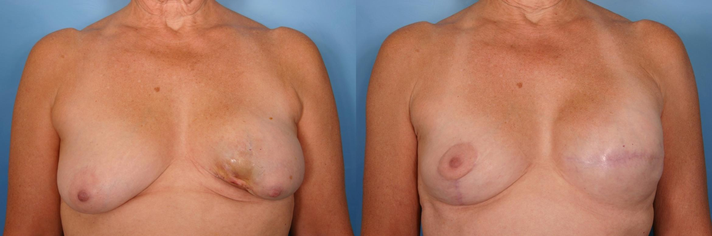 Breast Lift Case 34 Before & After View #1 | Naples, FL | Kent V. Hasen, M.D.