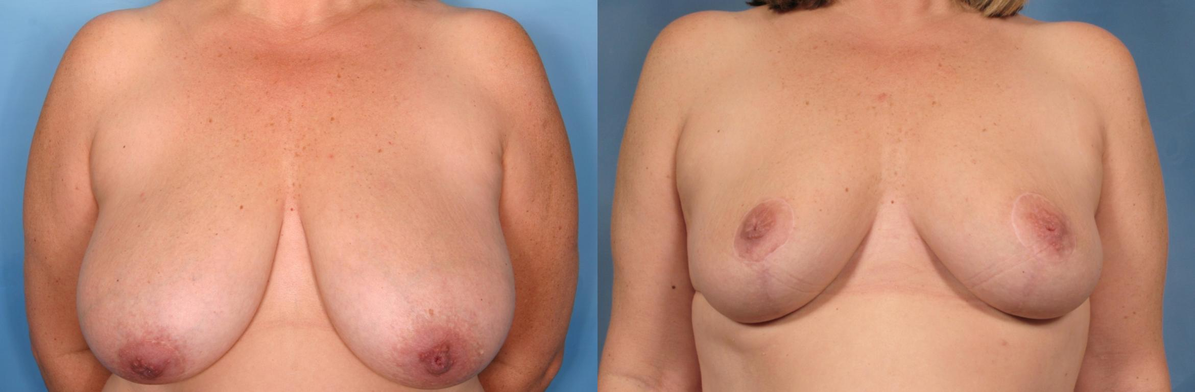 Breast Reduction Case 102 Before & After View #1 | Naples, FL | Kent V. Hasen, M.D.