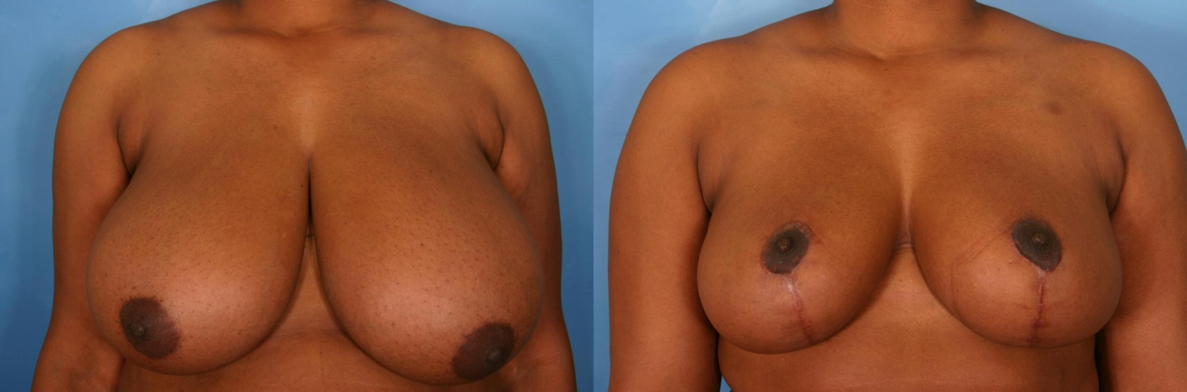 Breast Reduction Case 33 Before & After View #1 | Naples, FL | Kent V. Hasen, M.D.