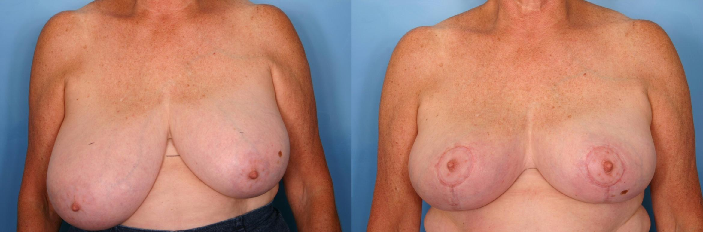 Breast Reduction Case 59 Before & After View #1 | Naples, FL | Kent V. Hasen, M.D.