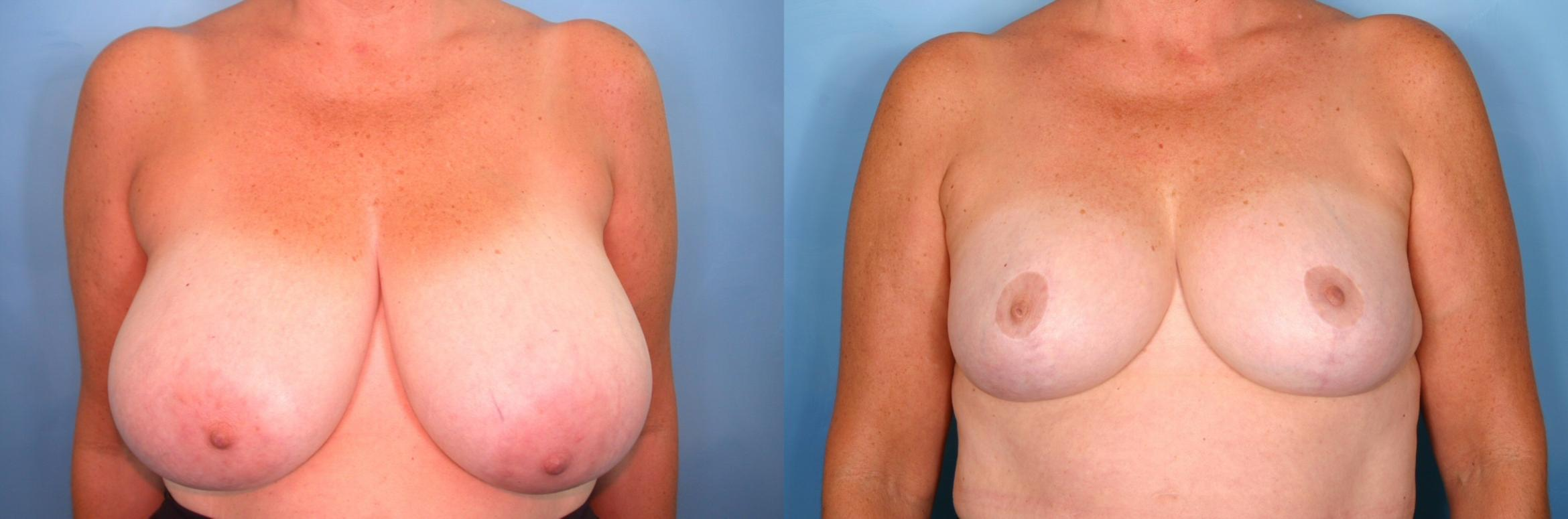Breast Reduction Case 65 Before & After View #1 | Naples, FL | Kent V. Hasen, M.D.
