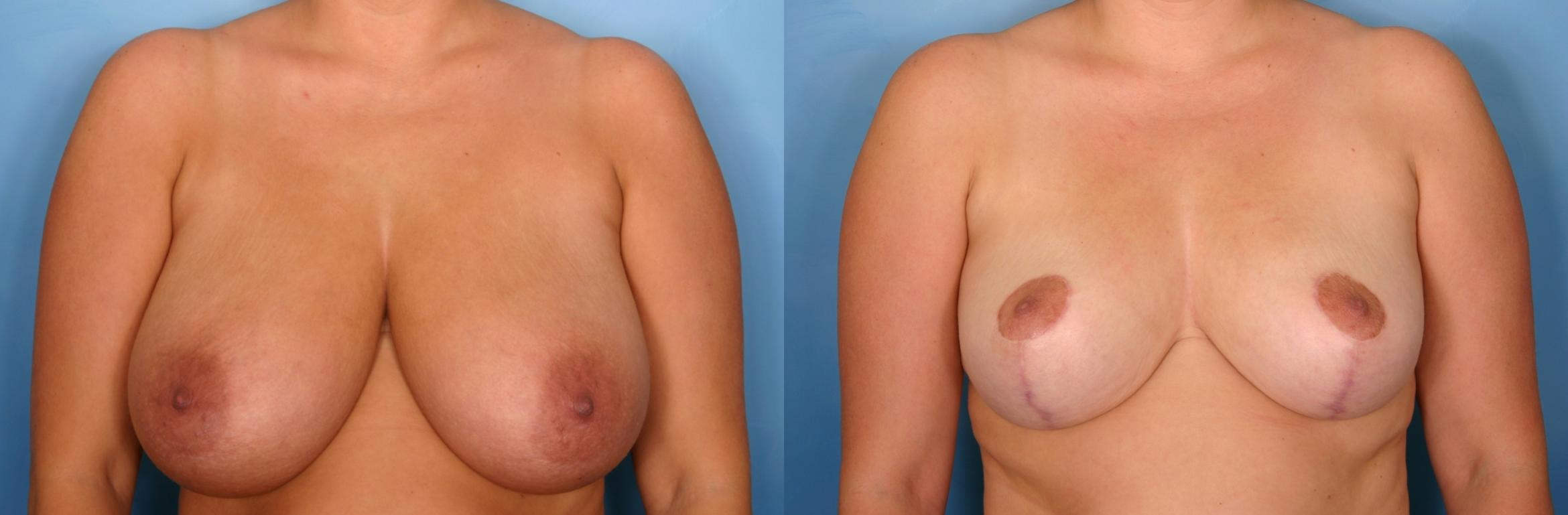 Breast Reduction Case 83 Before & After View #1 | Naples, FL | Kent V. Hasen, M.D.