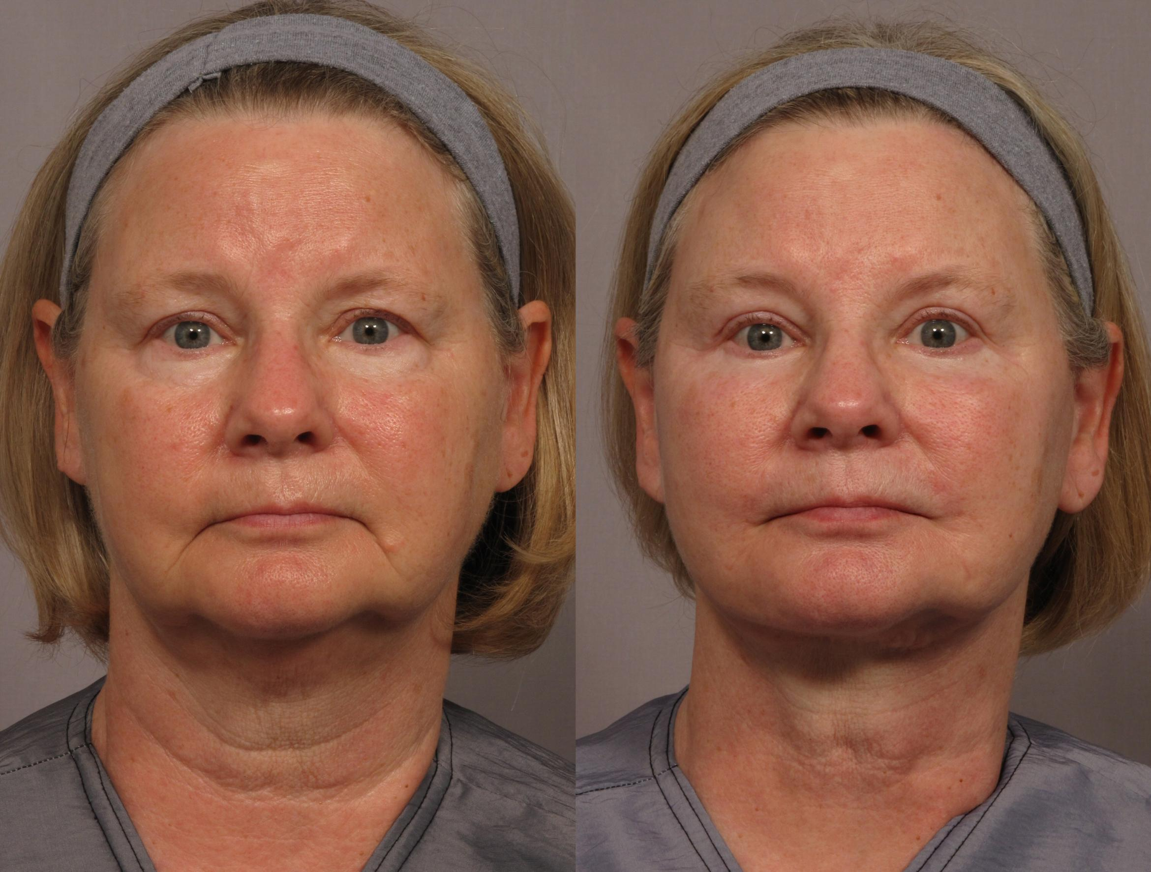 Brow Lift Case 325 Before & After View #1 | Naples, FL | Kent V. Hasen, M.D.