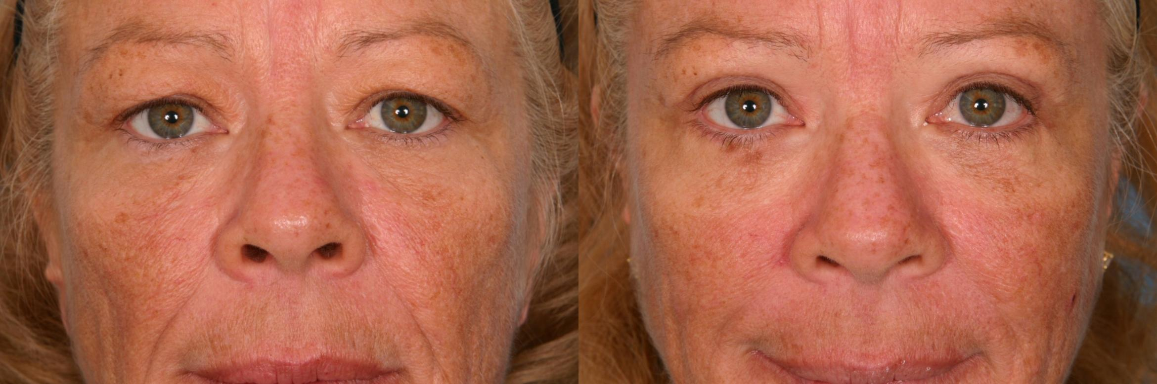 Brow Lift Case 54 Before & After View #1 | Naples, FL | Kent V. Hasen, M.D.