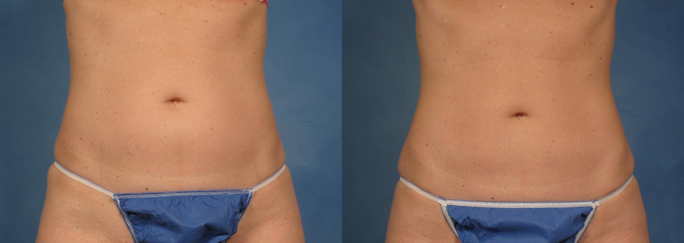 CoolSculpting® Case 139 Before & After View #2 | Naples, FL | Kent V. Hasen, M.D.