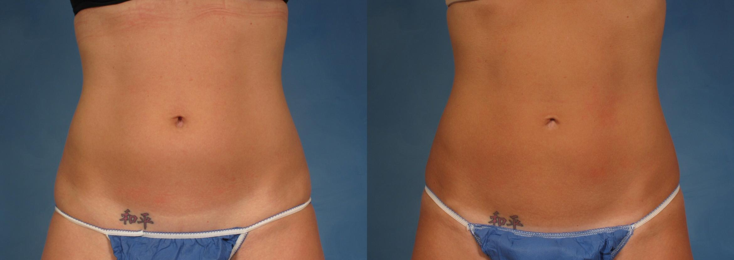 CoolSculpting® Case 167 Before & After View #1 | Naples, FL | Kent V. Hasen, M.D.