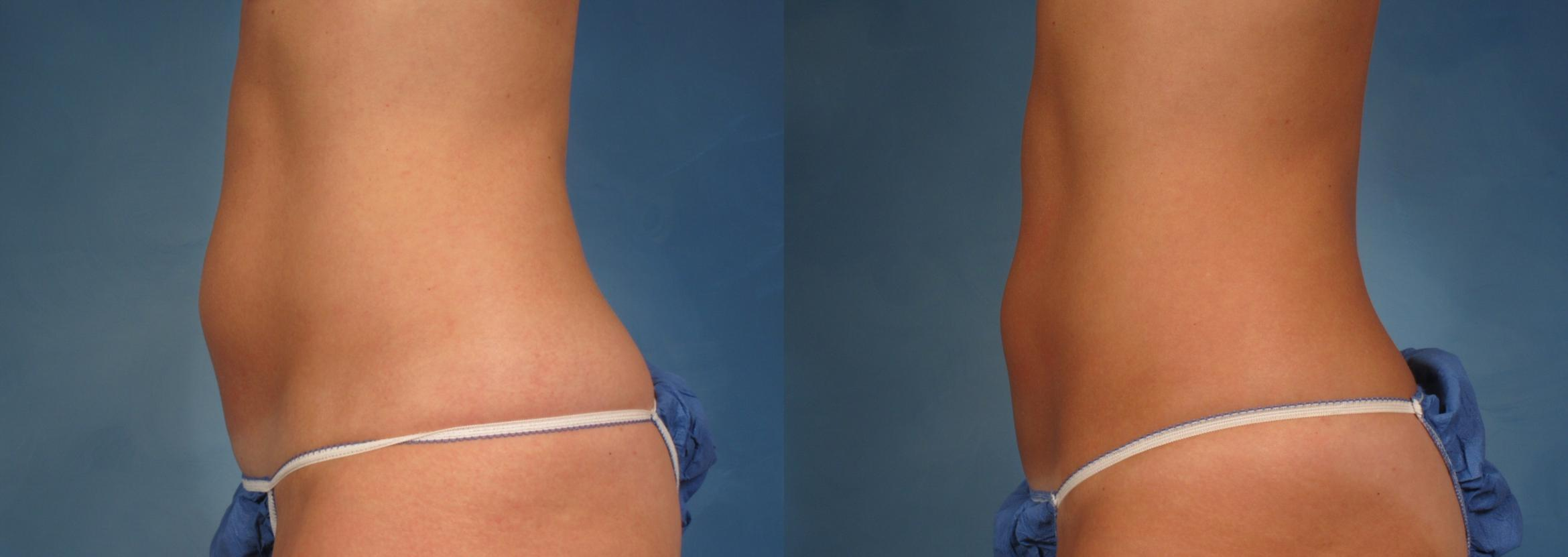 CoolSculpting® Case 167 Before & After View #3 | Naples, FL | Kent V. Hasen, M.D.