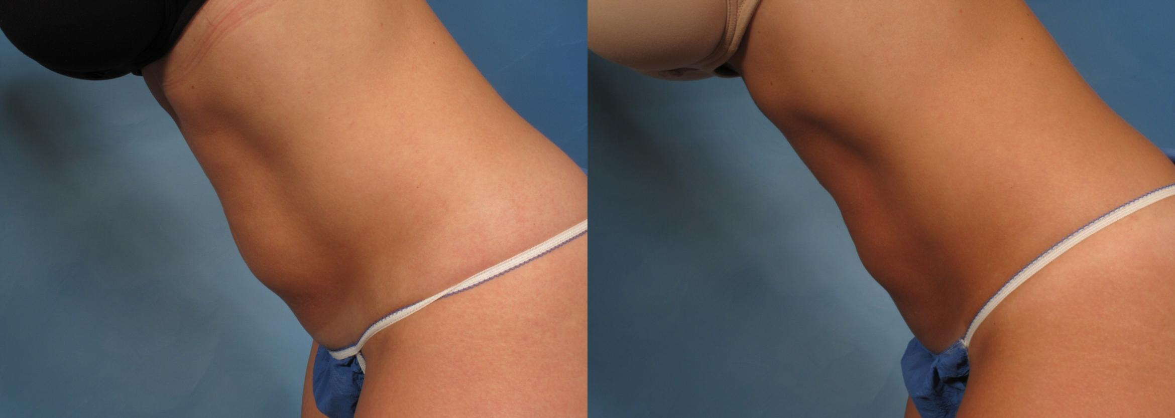 CoolSculpting® Case 167 Before & After View #4 | Naples, FL | Kent V. Hasen, M.D.