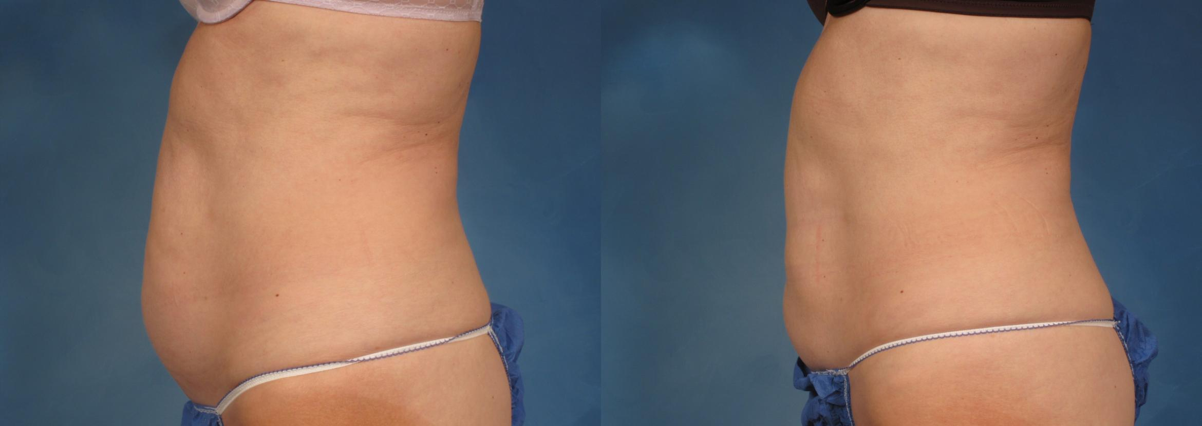 CoolSculpting® Case 195 Before & After View #1 | Naples, FL | Kent V. Hasen, M.D.