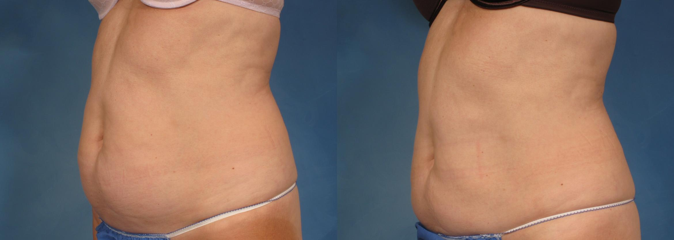 CoolSculpting® Case 195 Before & After View #2 | Naples, FL | Kent V. Hasen, M.D.