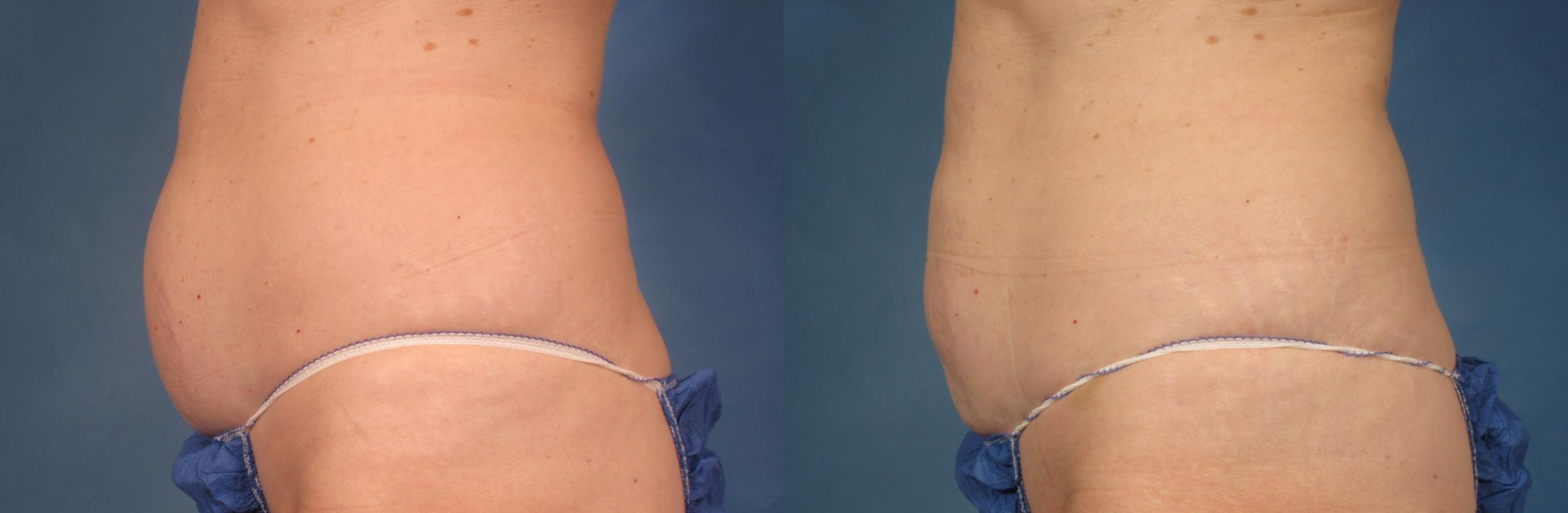 CoolSculpting® Case 213 Before & After View #1 | Naples, FL | Kent V. Hasen, M.D.