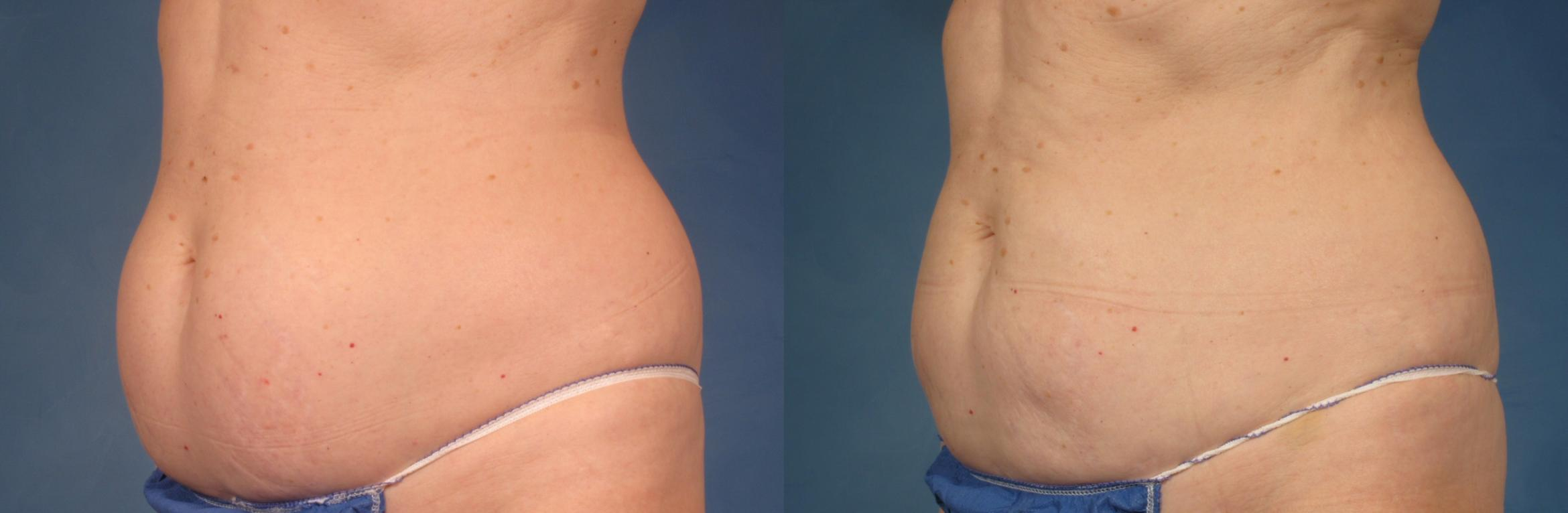CoolSculpting® Case 213 Before & After View #2 | Naples, FL | Kent V. Hasen, M.D.