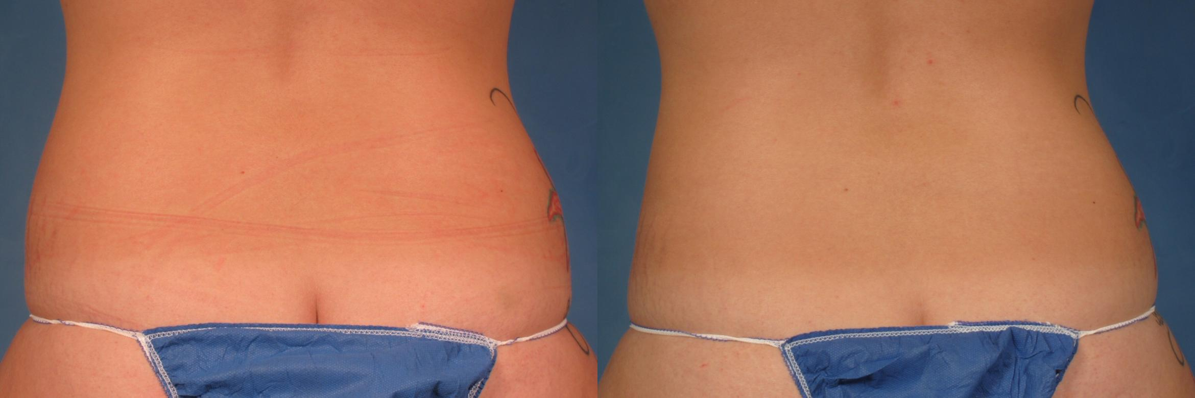 CoolSculpting® Case 214 Before & After View #1 | Naples, FL | Kent V. Hasen, M.D.