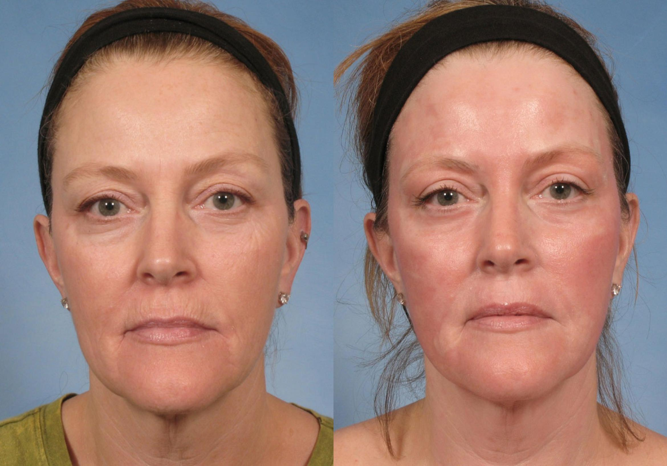 Croton Oil Peel Case 103 Before & After View #1 | Naples, FL | Kent V. Hasen, M.D.
