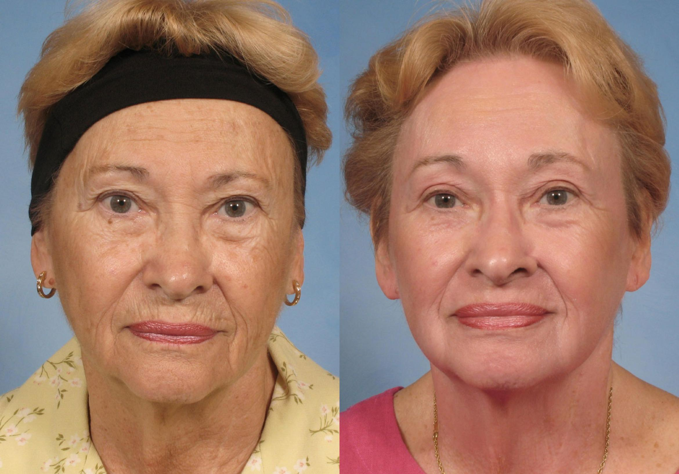 Croton Oil Peel Case 123 Before & After View #2 | Naples, FL | Kent V. Hasen, M.D.