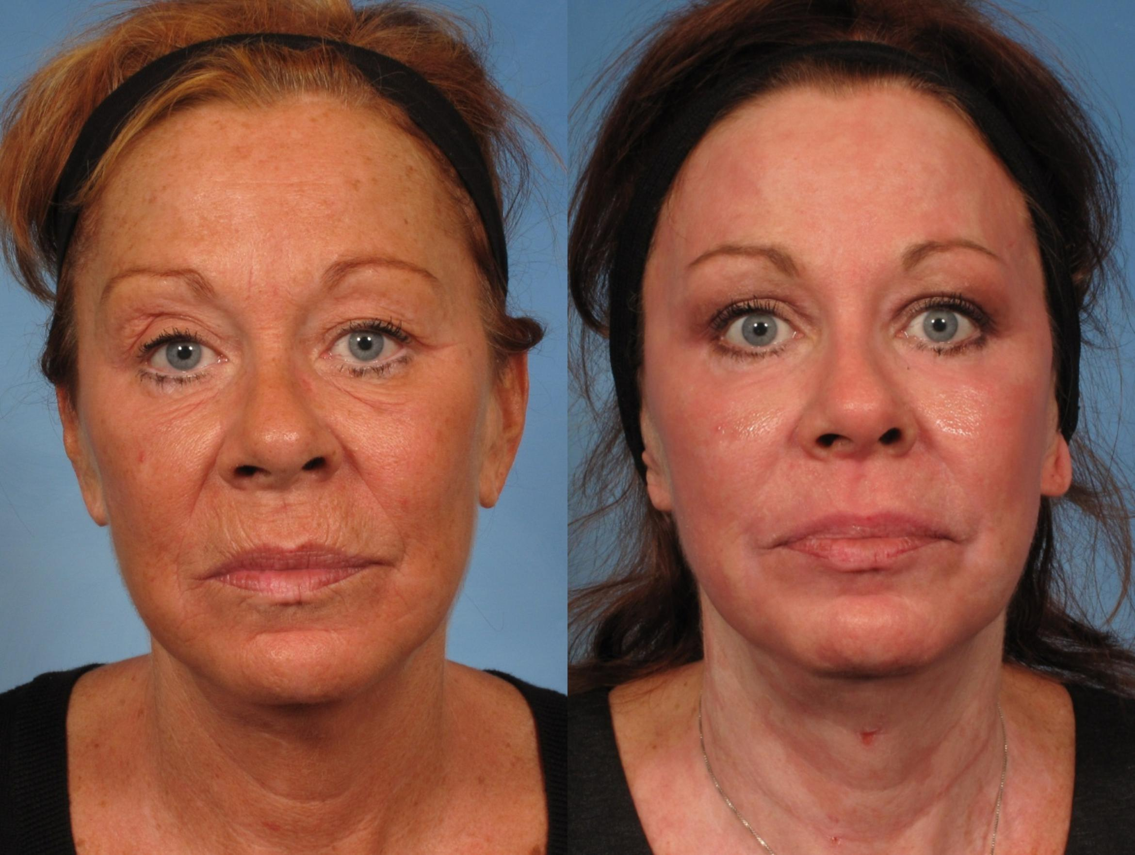 Croton Oil Peel Case 151 Before & After View #1 | Naples, FL | Kent V. Hasen, M.D.