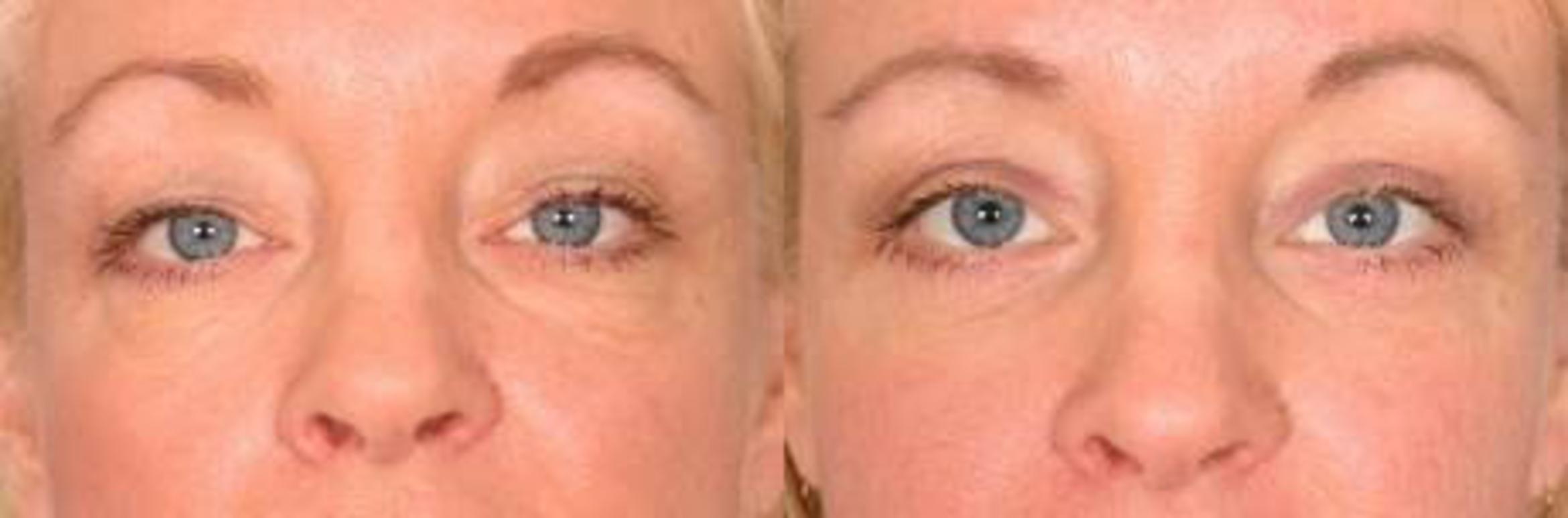 Eyelid Lift (Blepharoplasty) Before & After Photos Patient ...