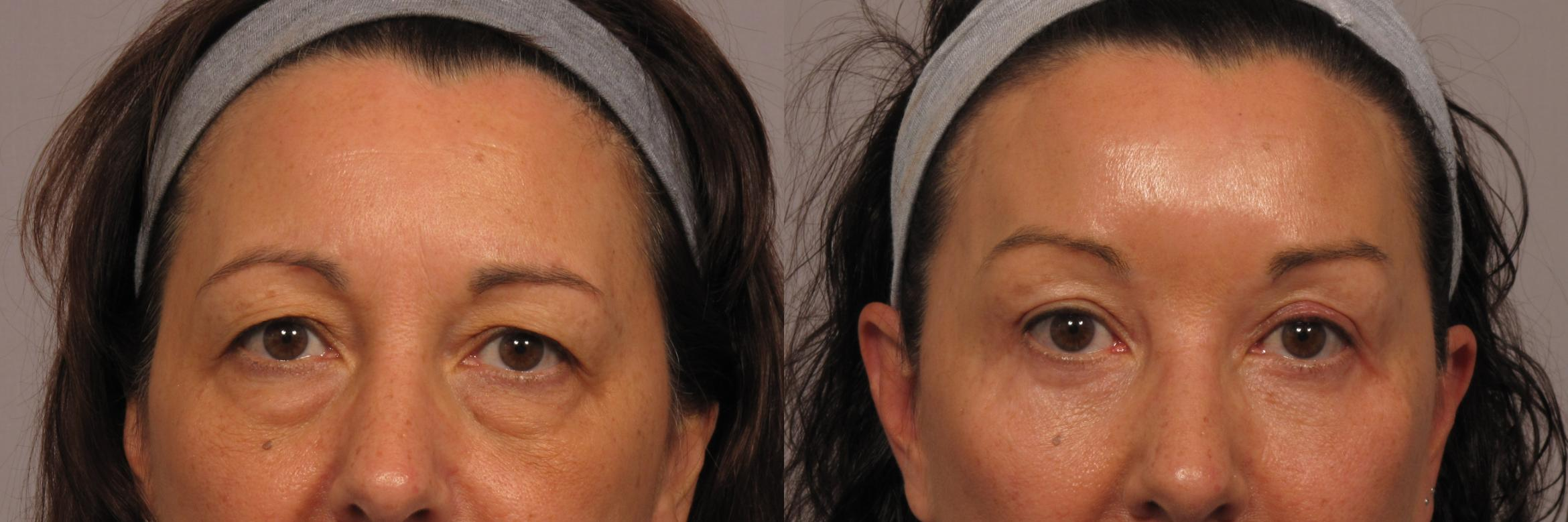Front View of Patient who underwent eyelid lift and brow lift