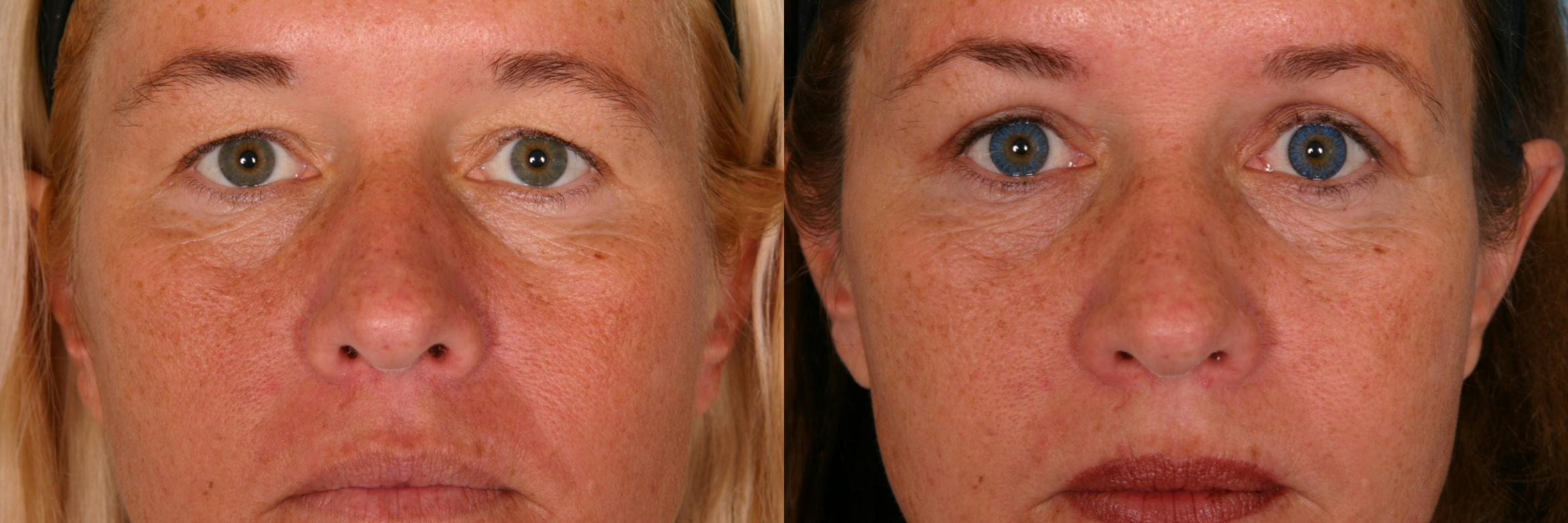 Eyelid Lift (Blepharoplasty) Case 51 Before & After View #1 | Naples, FL | Kent V. Hasen, M.D.
