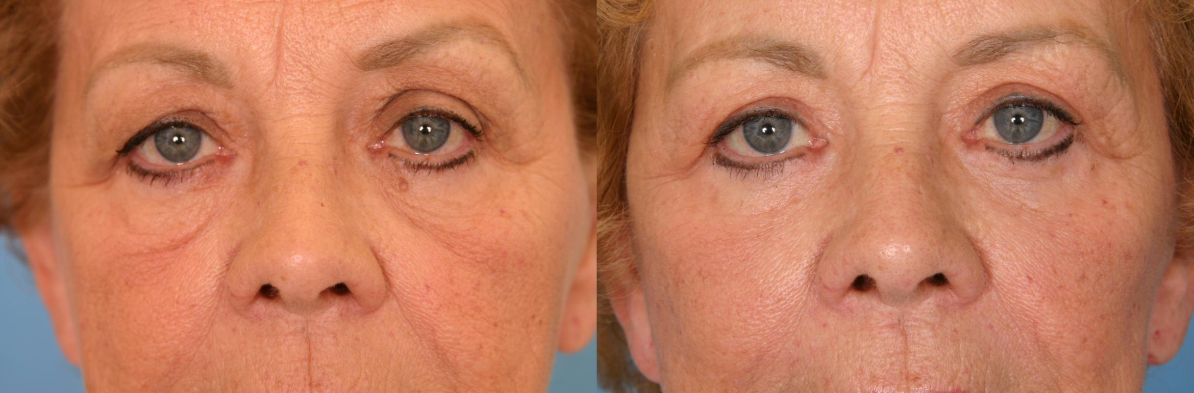Eyelid Lift (Blepharoplasty) Case 52 Before & After View #1 | Naples, FL | Kent V. Hasen, M.D.