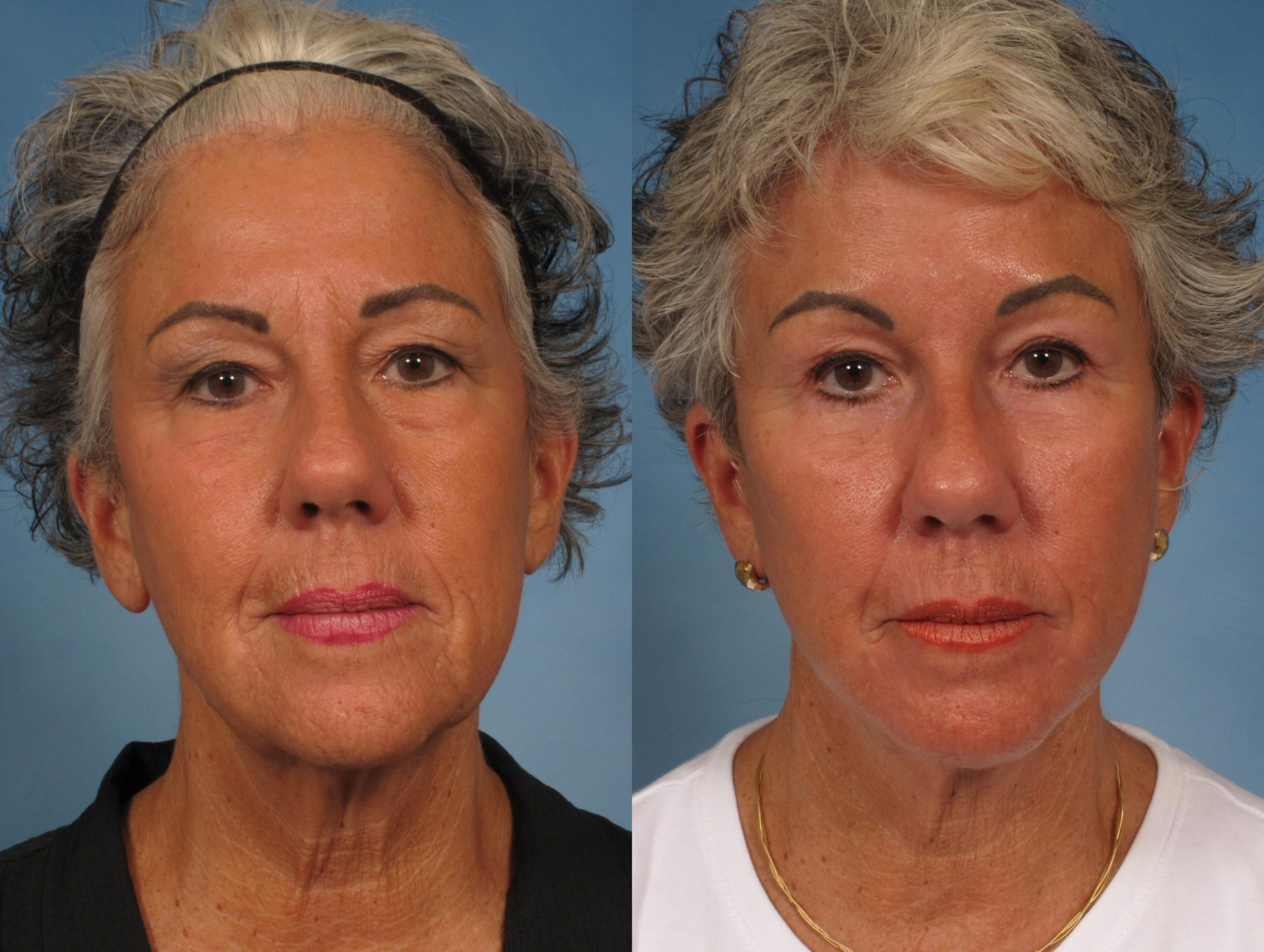 Facelift Case 185 Before & After View #1 | Naples, FL | Kent V. Hasen, M.D.
