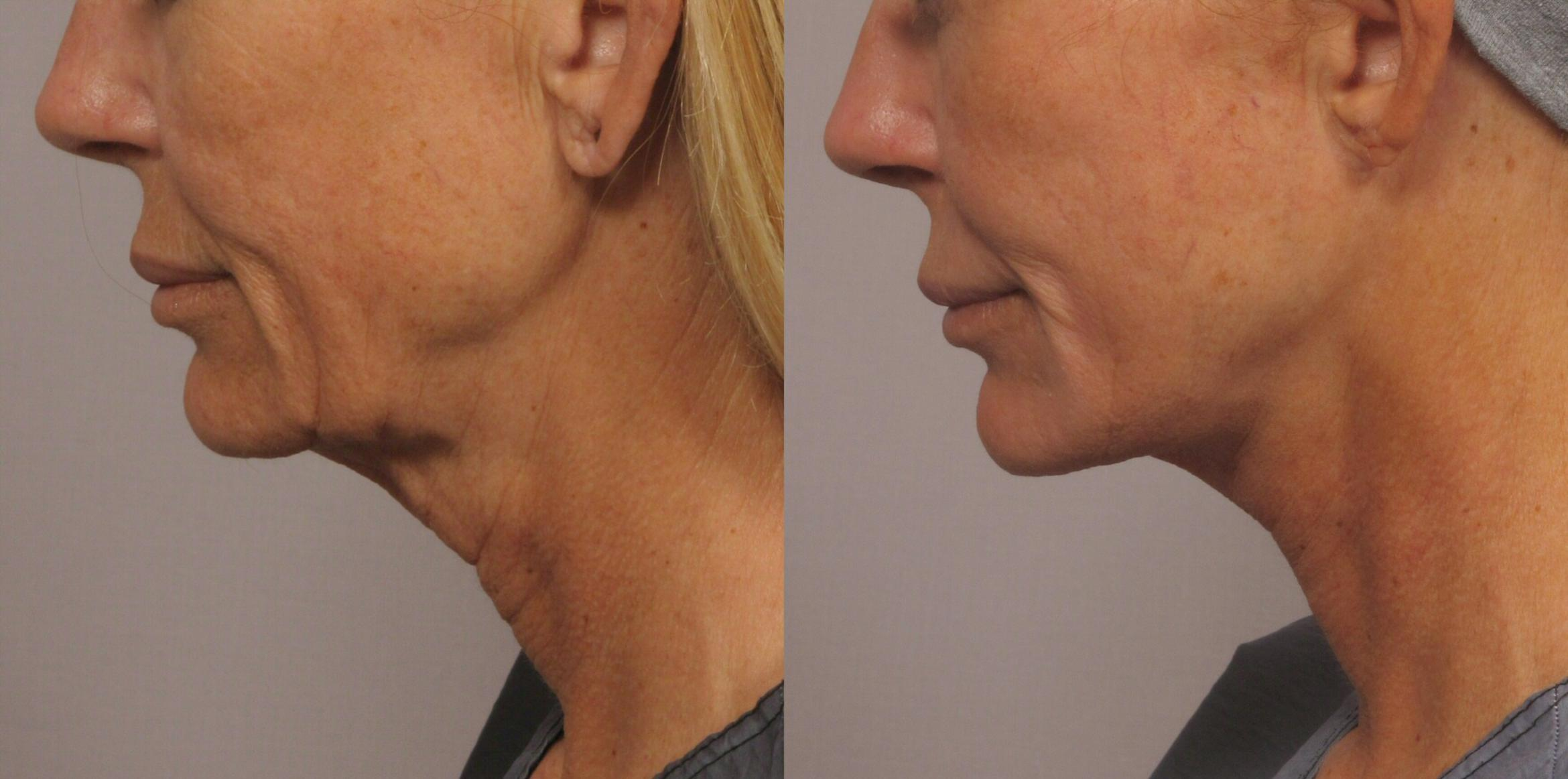 Facelift Case 333 Before & After View #1 | Naples, FL | Kent V. Hasen, M.D.