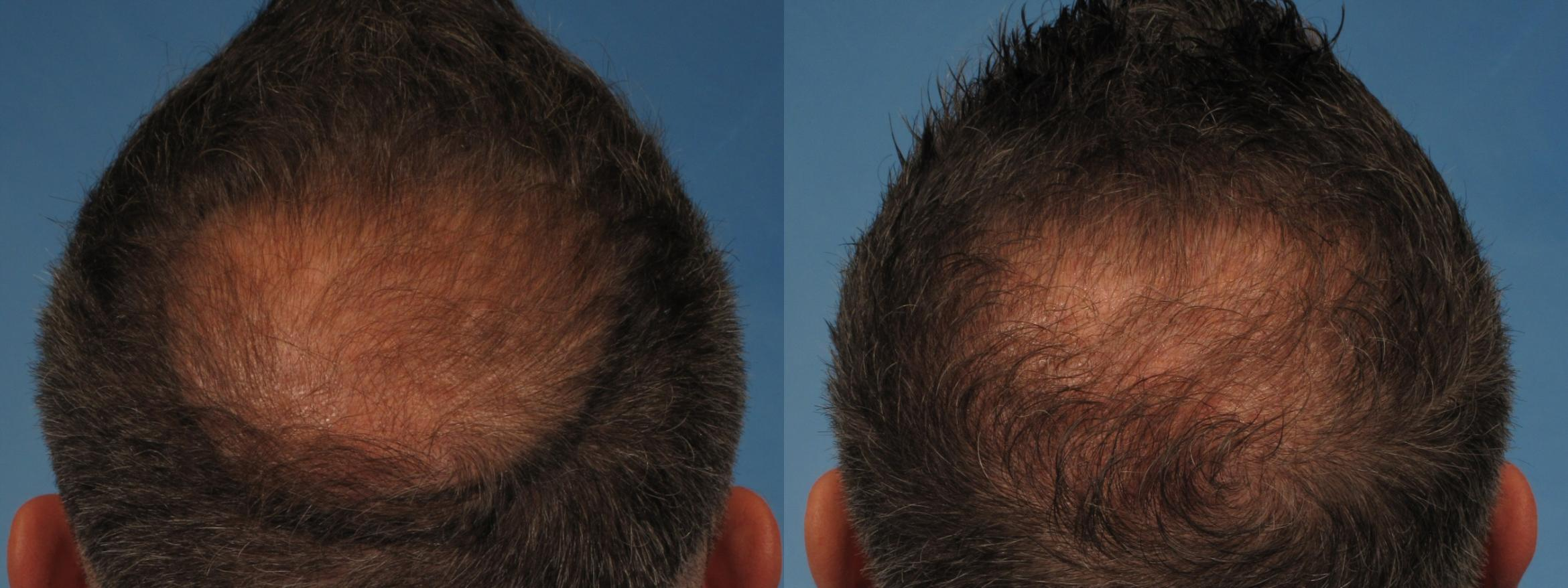 Hair Restoration Case 227 Before & After View #2 | Naples, FL | Kent V. Hasen, M.D.