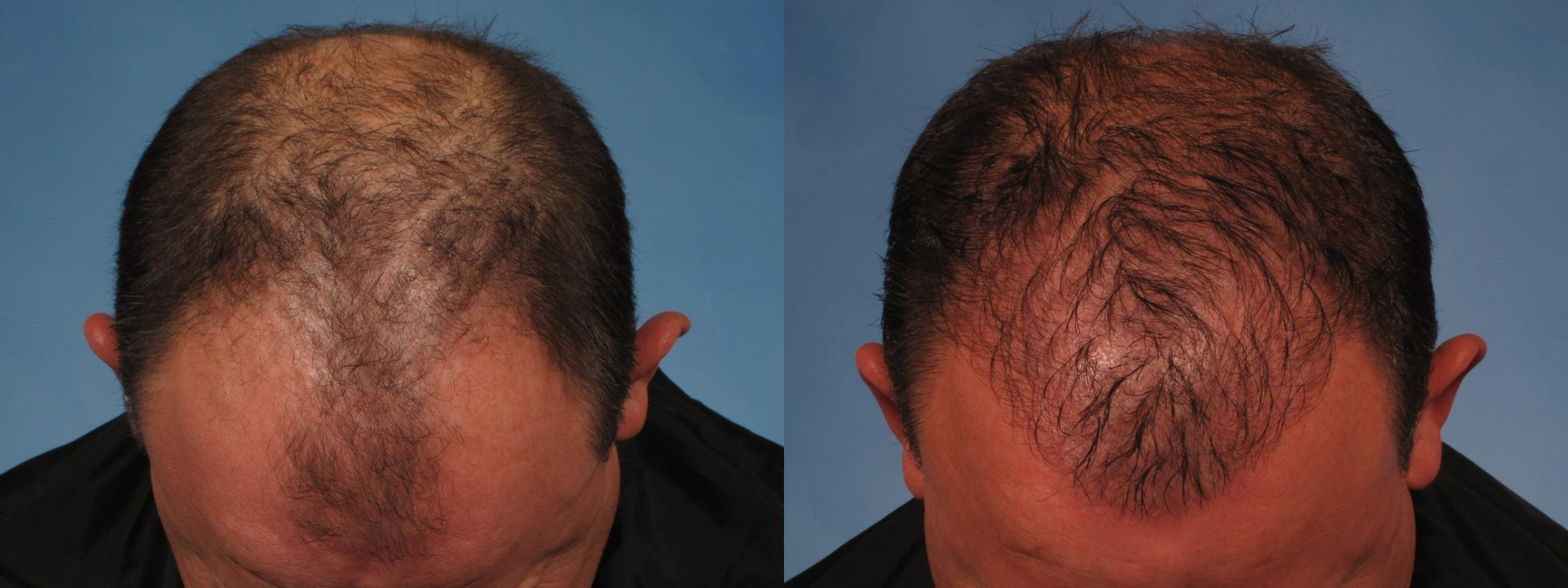 Hair Restoration Case 275 Before & After View #1 | Naples, FL | Kent V. Hasen, M.D.
