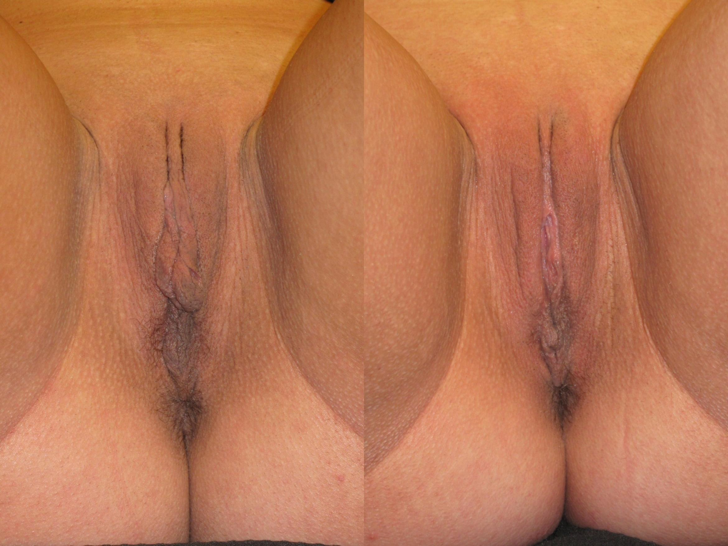 Labiaplasty Case 226 Before & After View #1 | Naples, FL | Kent V. Hasen, M.D.