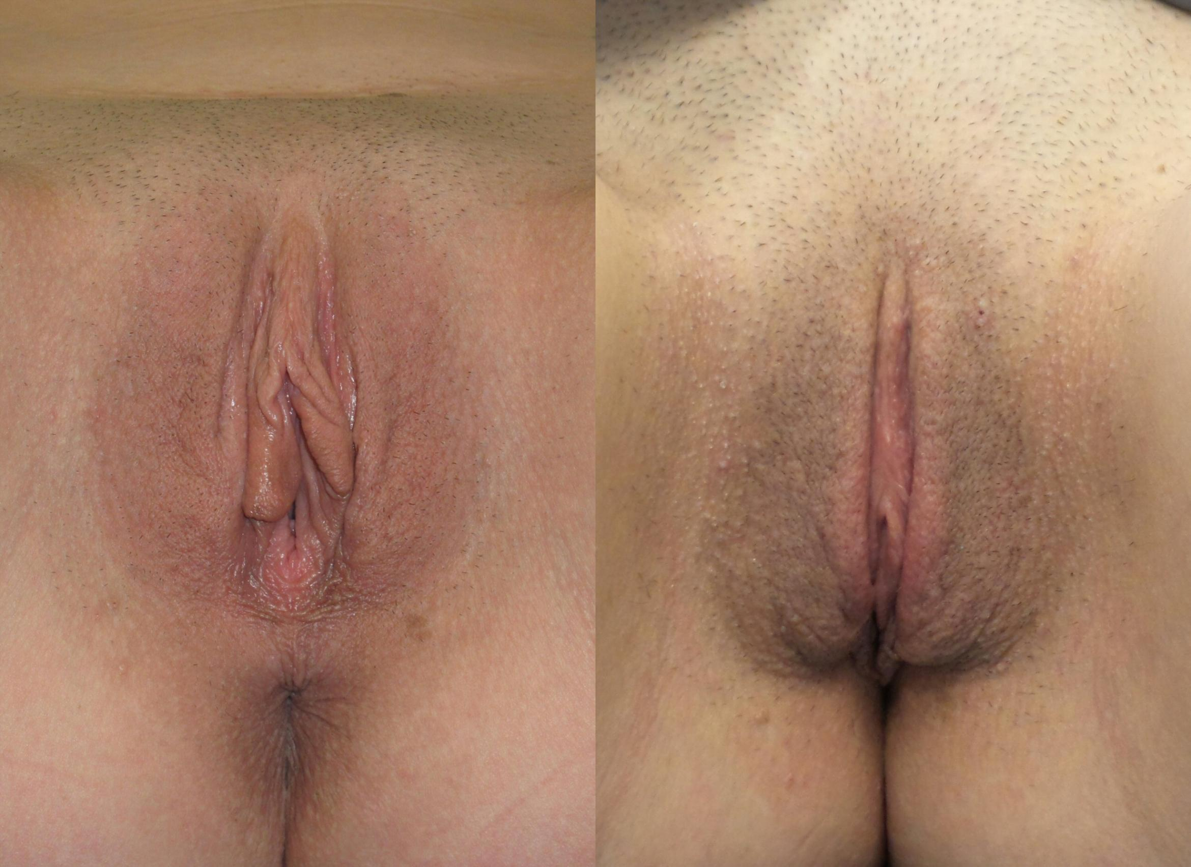 Labiaplasty frontal view before surgery