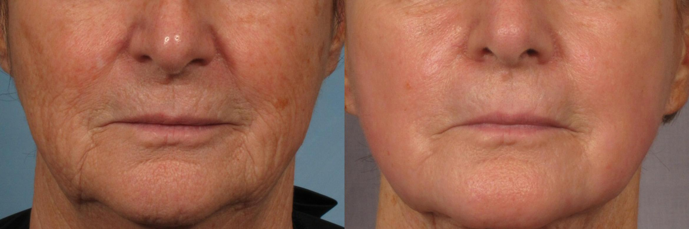Laser Resurfacing - Total FX Case 318 Before & After View #1 | Naples, FL | Kent V. Hasen, M.D.