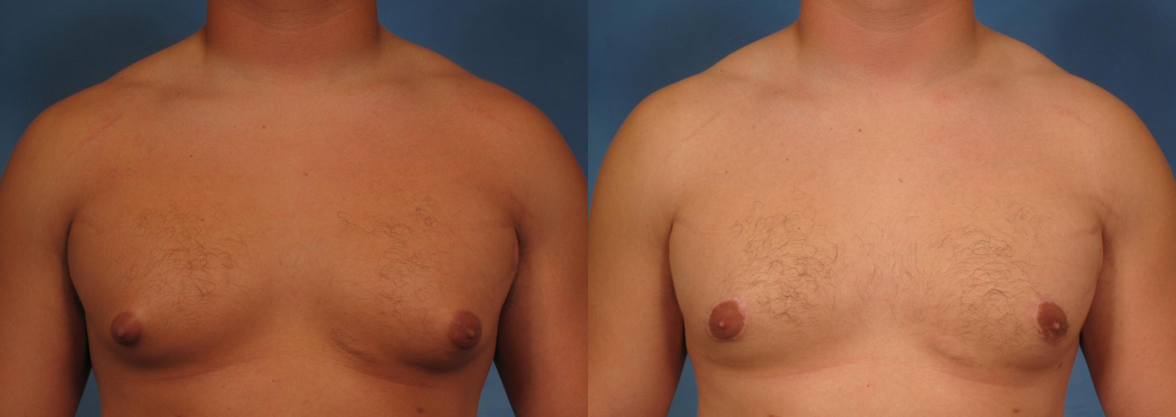 Liposuction Case 177 Before & After View #1 | Naples, FL | Kent V. Hasen, M.D.