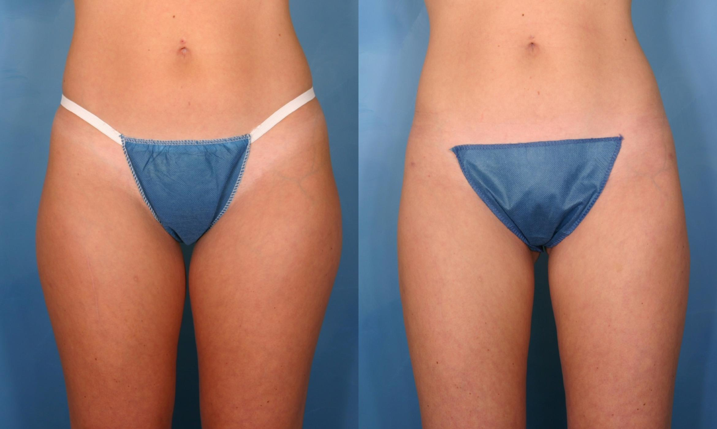 Liposuction For Naples Fort Myers Fl Kent V Hasen M D
