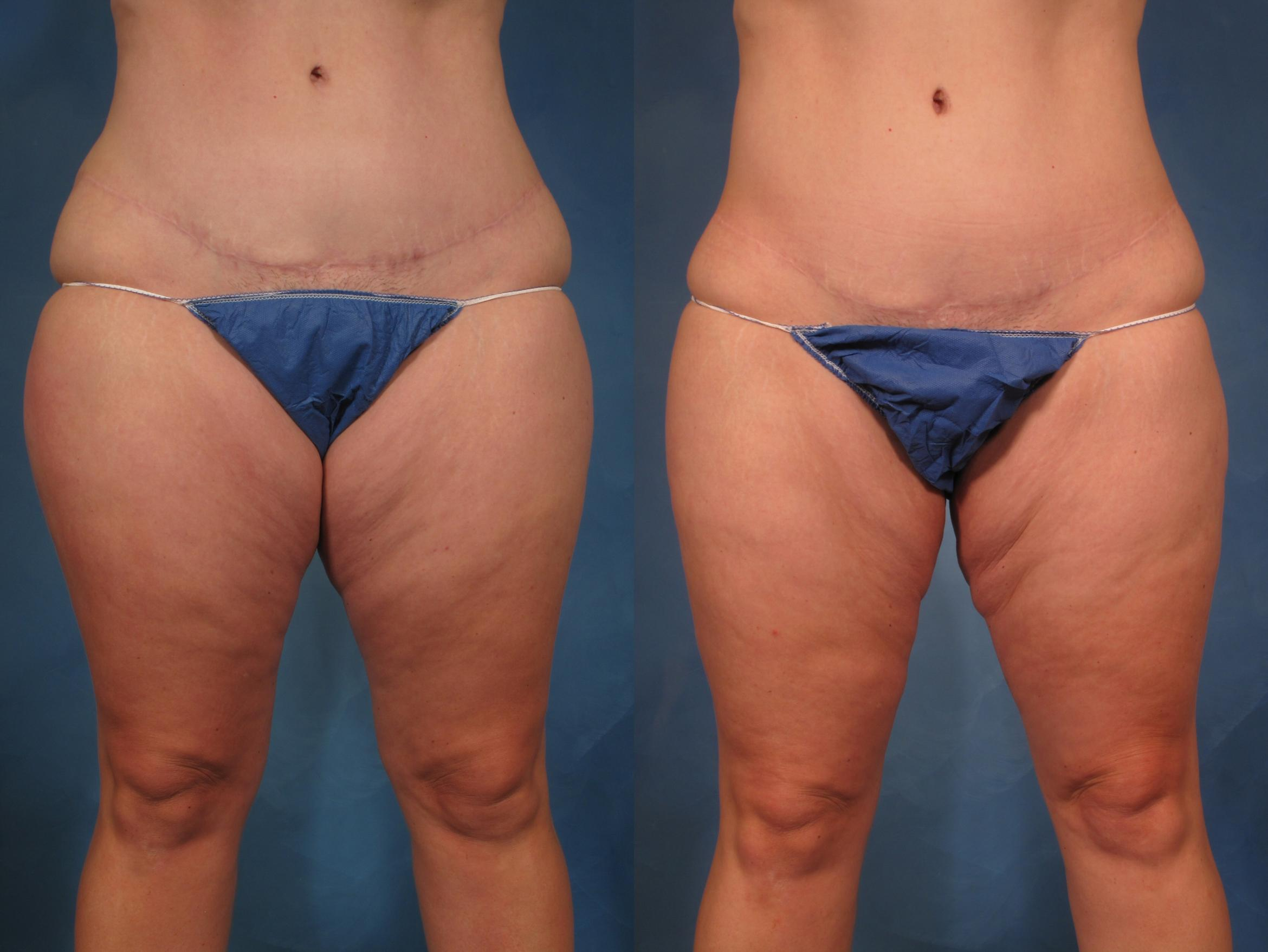 Liposuction of Thighs/Hips Before and 1 Year After, Front View