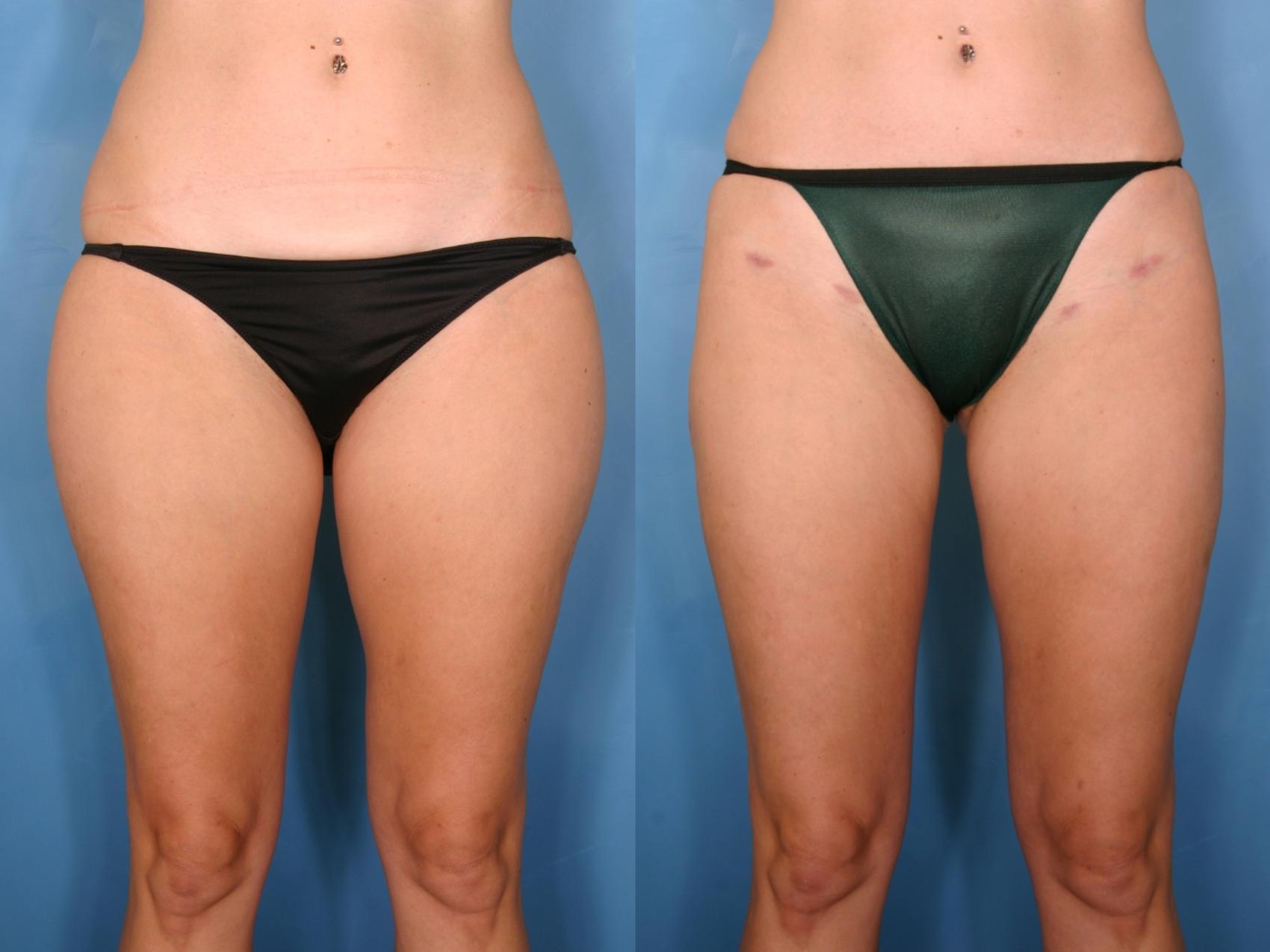 Liposuction For Naples Fort Myers Fl Kent V Hasen M D
